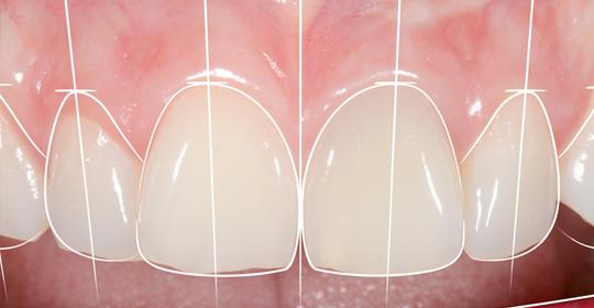 ELBWEISS Behandlungen Zahnaesthetik